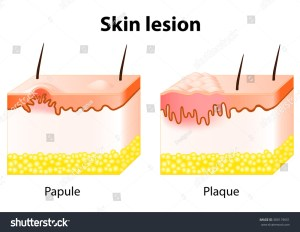 Skin Lesion Papule Is A Solid Elevation Of Skin And
