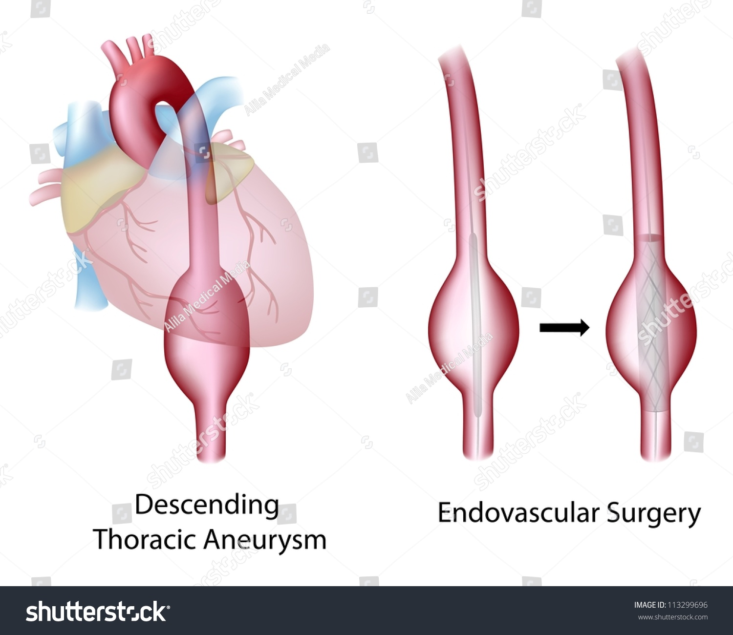 Thoracic Descending Aortic Aneurysm And Endovascular