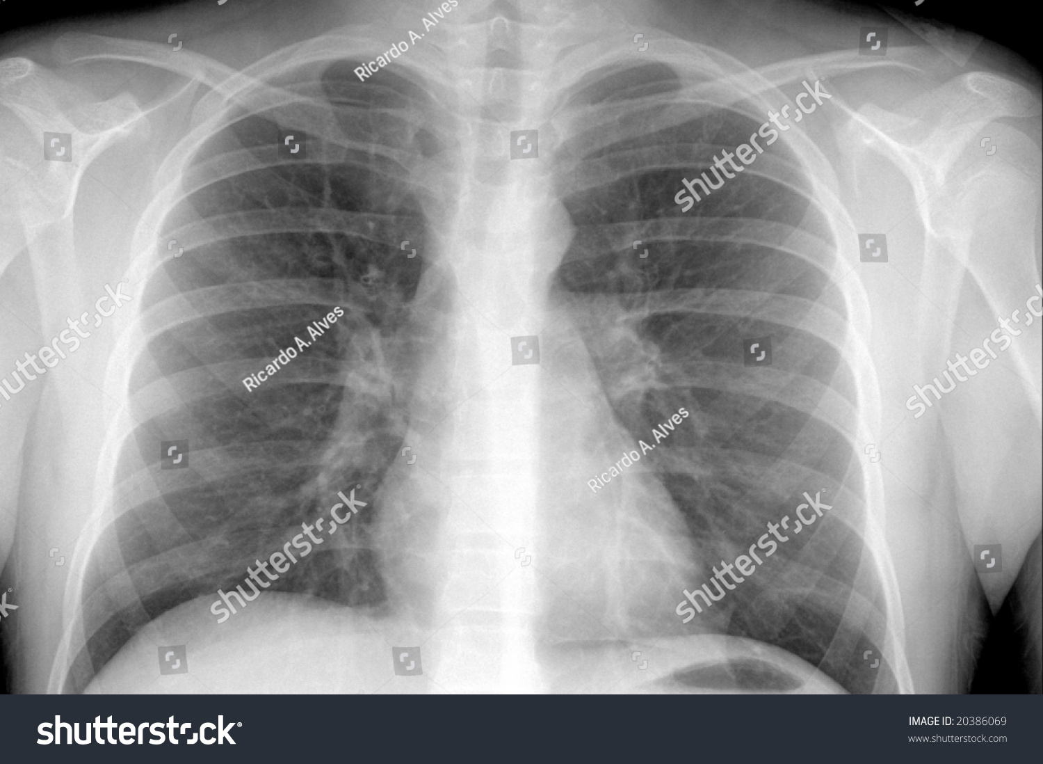 Xray Showing Males Chest Area Pneumonia Stock Photo