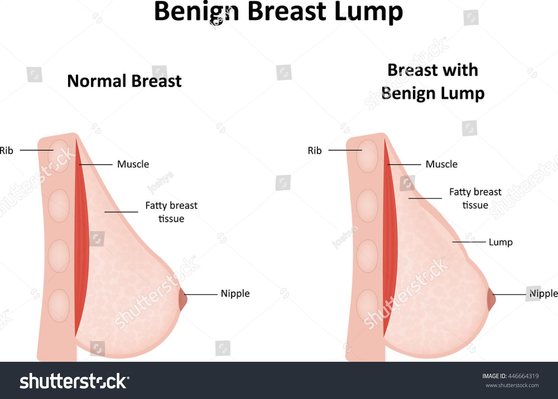 Benign Breast Lump Stock Vector Illustration 446664319 : Shutterstock