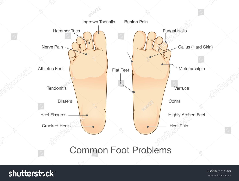 Foot Anatomy Bottom View