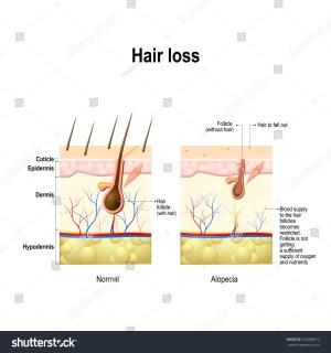 Hair Loss Normal Hair Alopecia Areata Stock Vector