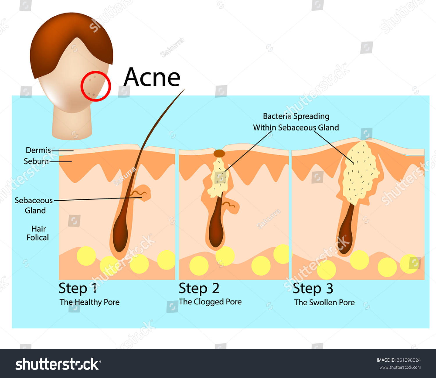 How Acne Develops Acne Stages Formation Stock Vector