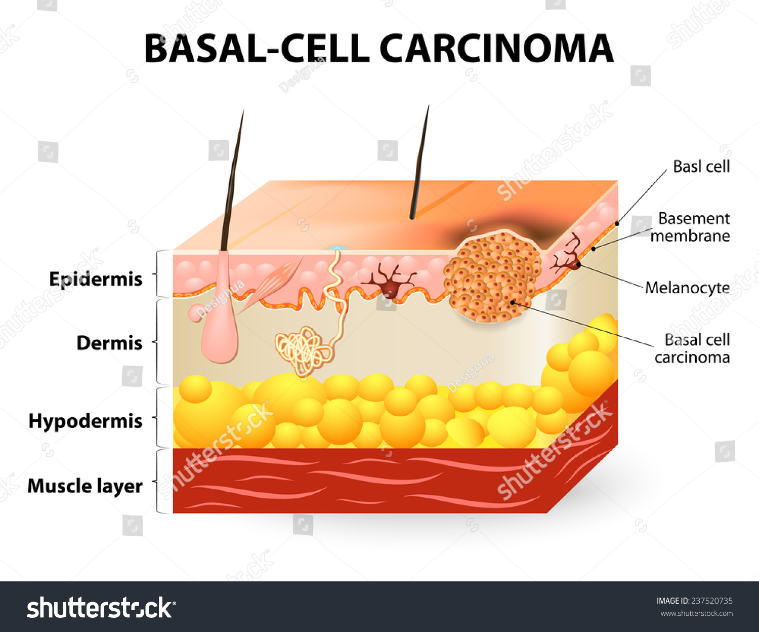 Skin Cancer Basalcell Carcinoma Basal Cell Stock Vector