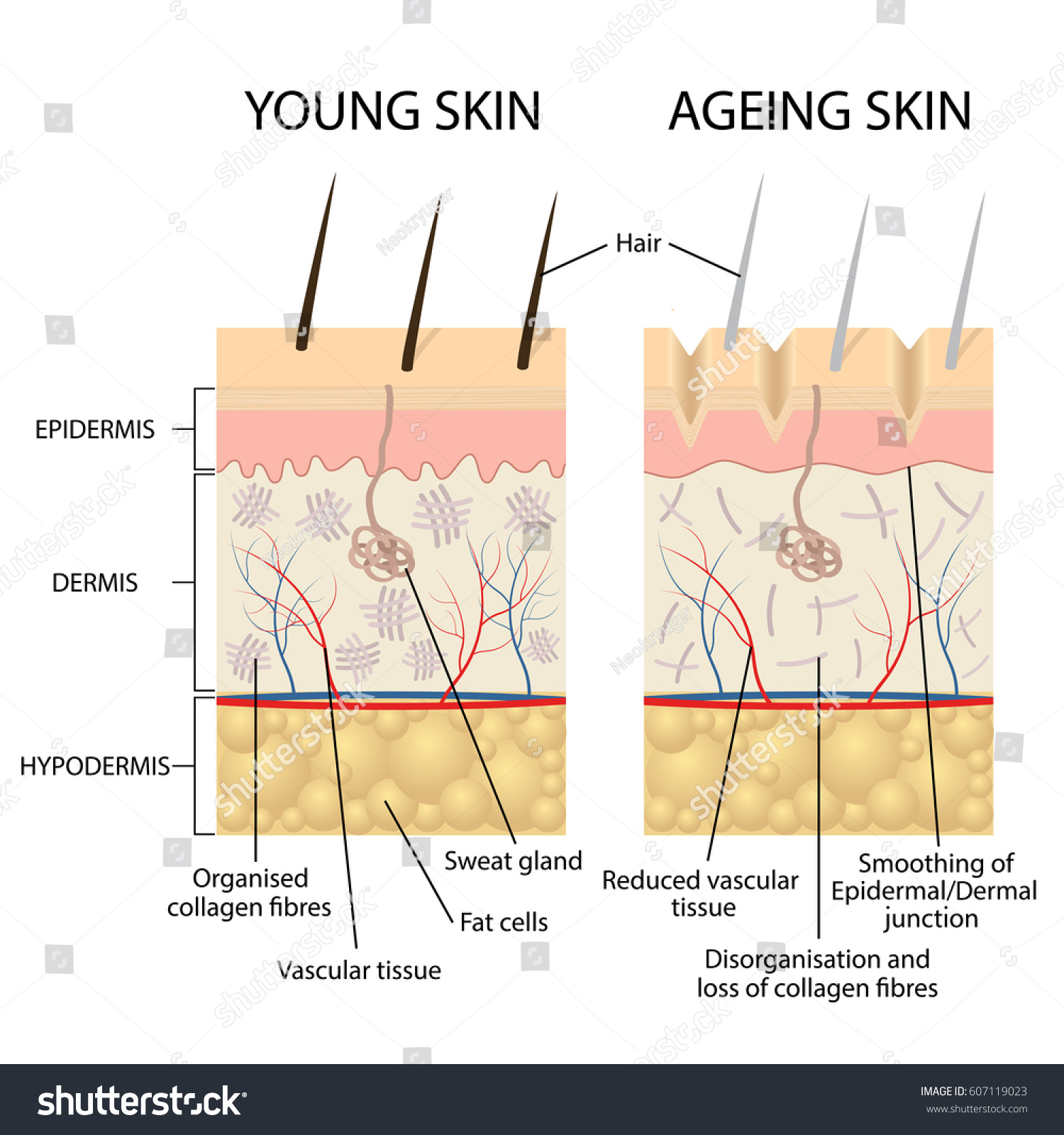 Young Healthy Skin Older Skin Comparison Stock Vector