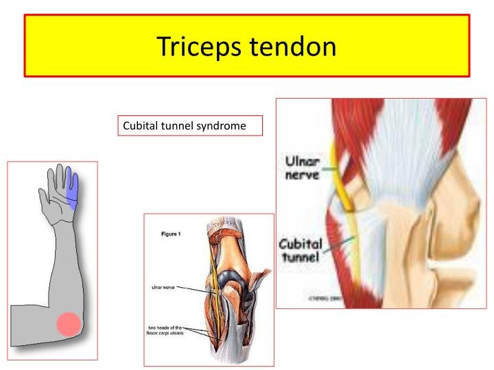 Epicondyle Medial Pain Humeral