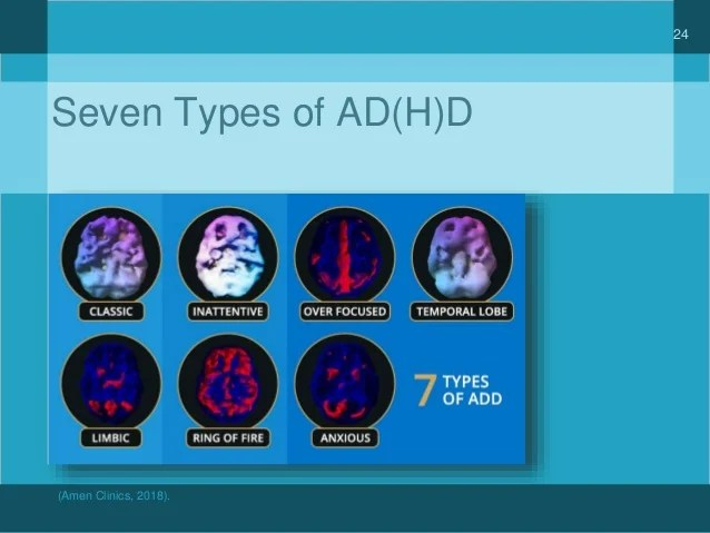 7 Dr Amen Types Adhd