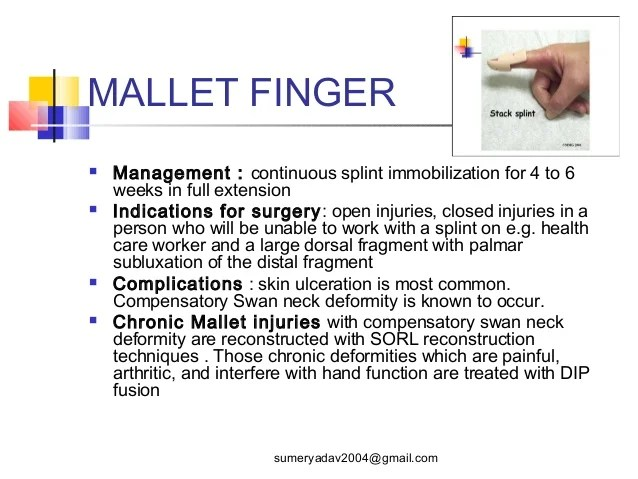 Extension Splint Finger Finger Mallet