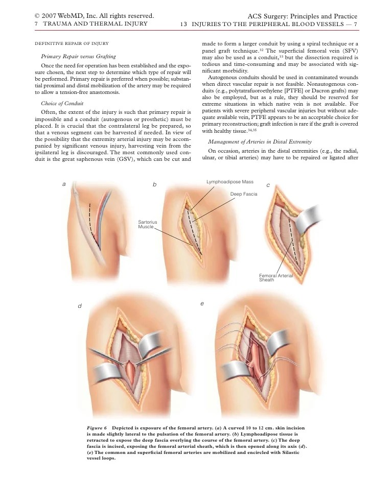 Peroneal Artery Exposure