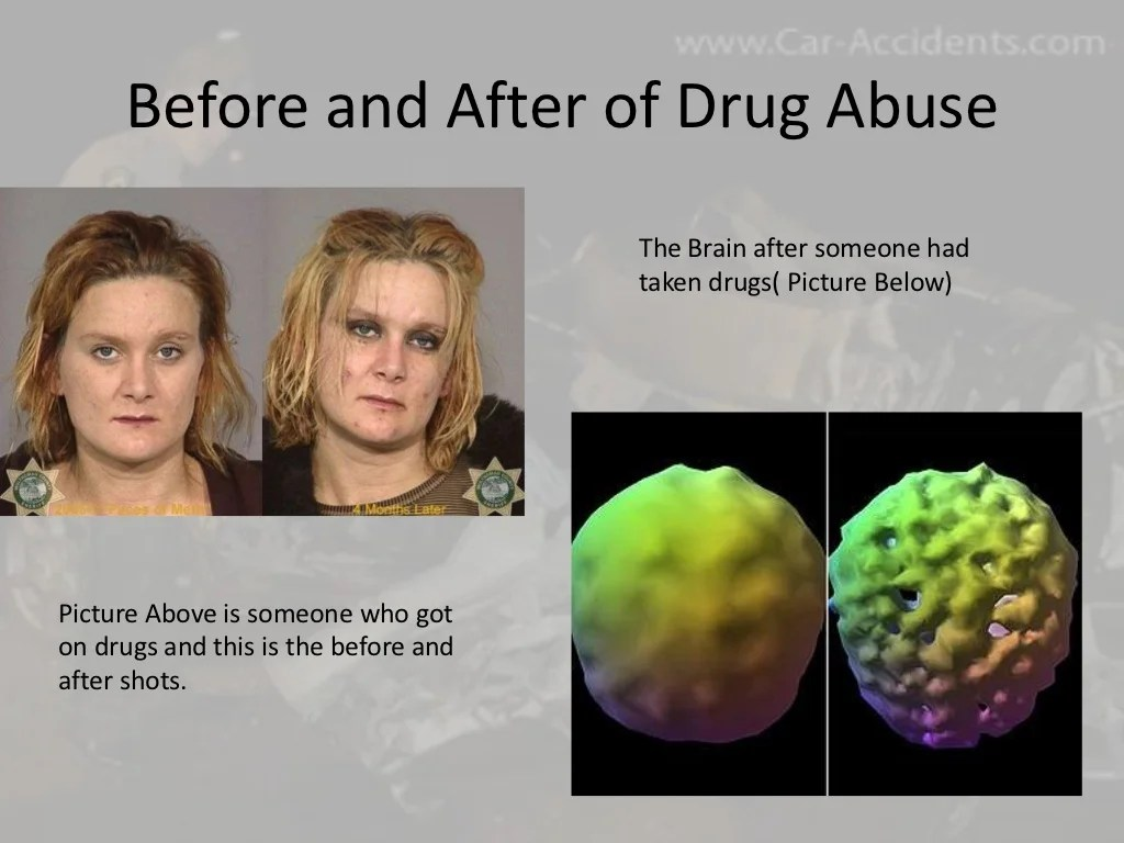 Alcohol And Drugs Powerpoint