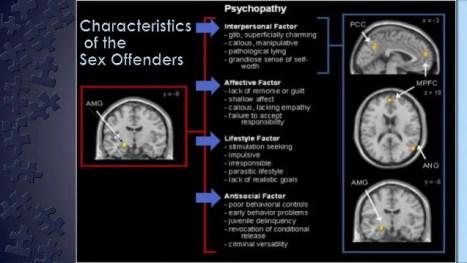 Resultado de imagen de Sex Offenders brain