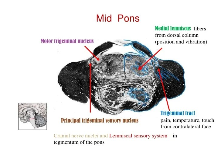 Brain Stem Anatomy Mri Axial
