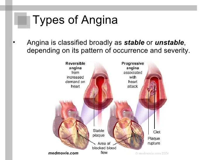 https://i1.wp.com/image.slidesharecdn.com/anginapectorispresentation-110122153823-phpapp01/95/angina-pectoris-presentation-10-728.jpg