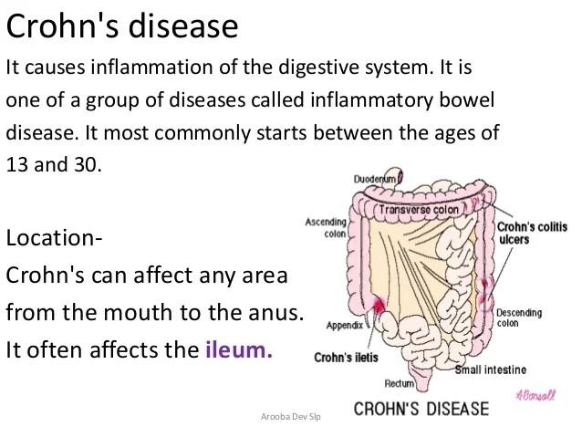Applied anatomy of digestive system