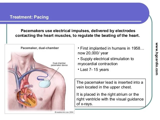 permanent cardiac pacing overview of devices and - 638×479