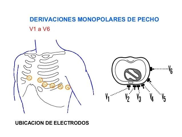 Location Mi And Affected Coronary Artery Ecg