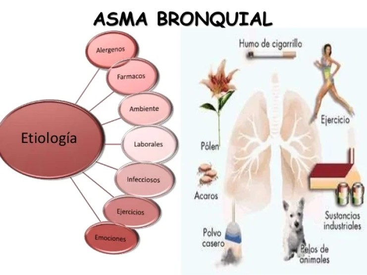 Resultado de imagen de asma