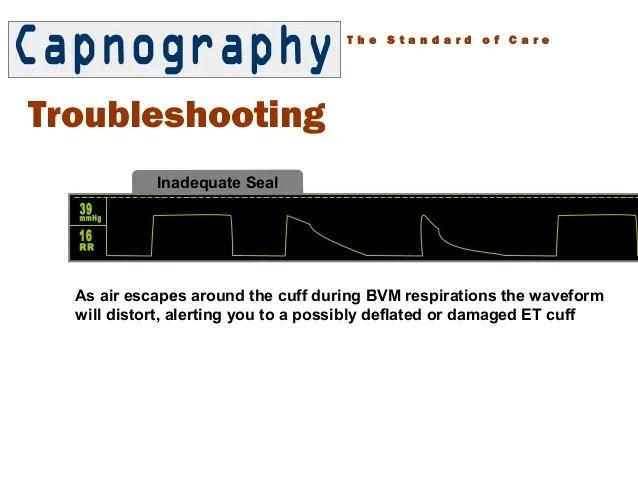 Normal Capnography Waveform During Cpr