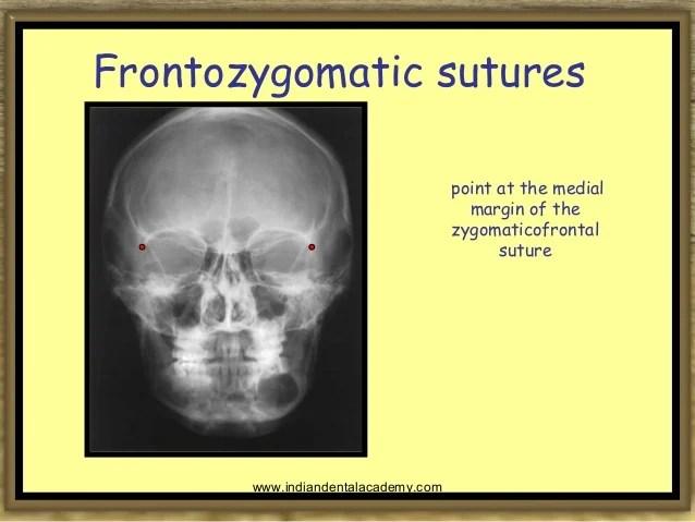 Spine Anterior Fracture Nasal