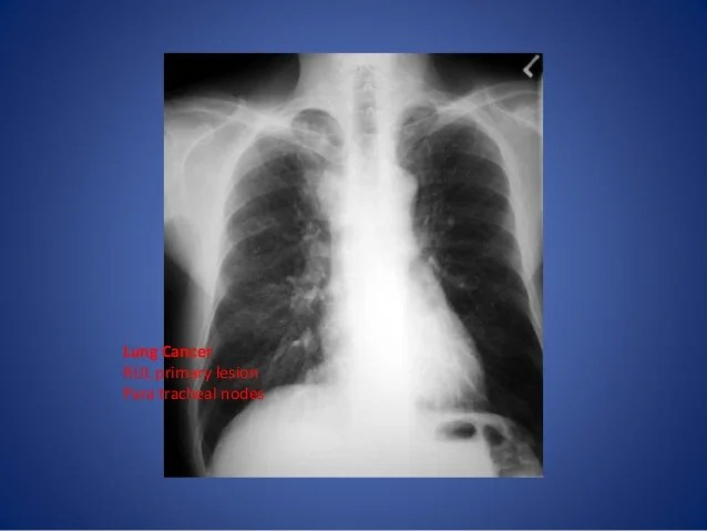 Anterior Mediastinal Lesion Aorta