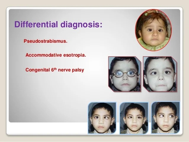 6th Surgery Palsy Nerve