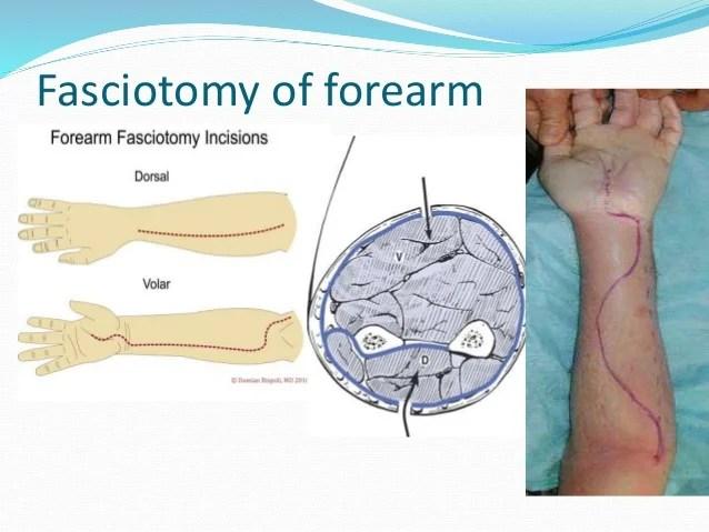 Compartment Syndrome Anterior Treatment
