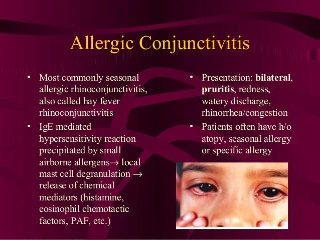 allergic conjunctivitis most commonly seasonal allergic ...