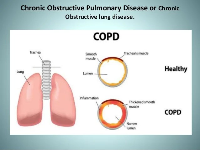 Chronic obstructive pulmonary disorders COPD
