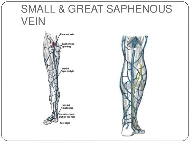 Dvt Soleal Vein Anatomy