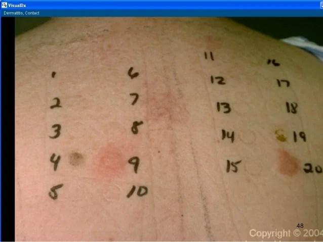 Image Result For Lanolin Allergy What To Avoid
