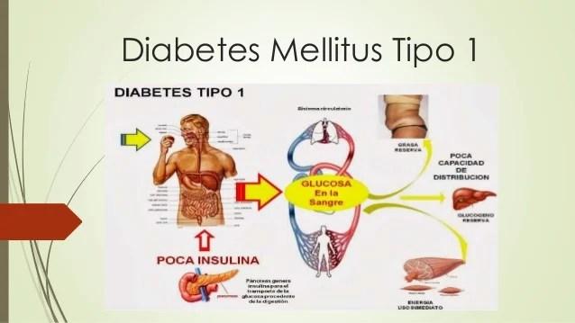 diabetes mellitustipo1 1 638 - La diabetes Tipos y prevención de enfermedad