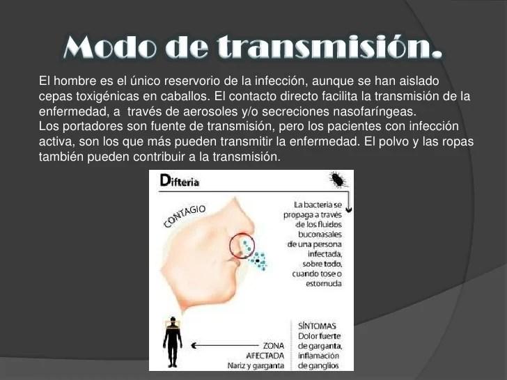 Resultado de imagen para difteria