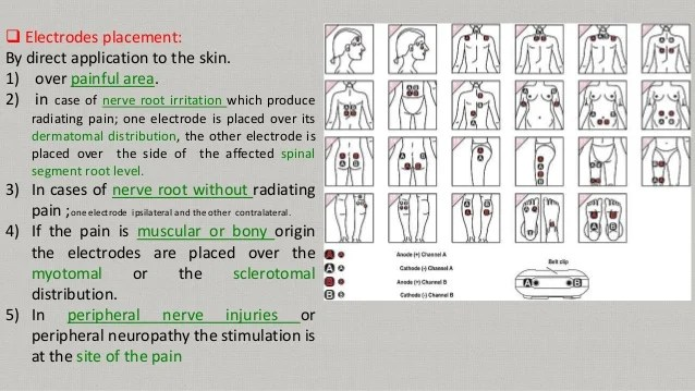 Tens Unit Pad Placement Chart