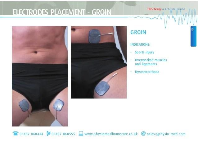Tens Placement Knee Unit Electrode