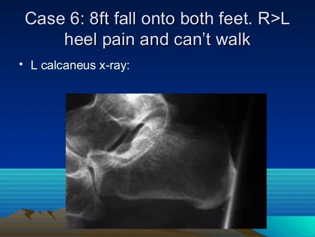 Accessory Bone X Navicular Ray