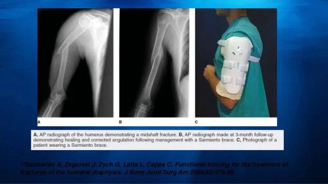 Compartment Syndrome Treatment Anterior
