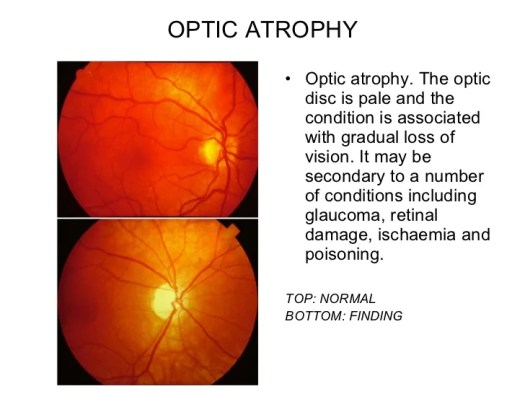 Image result for optic atrophy vs normal