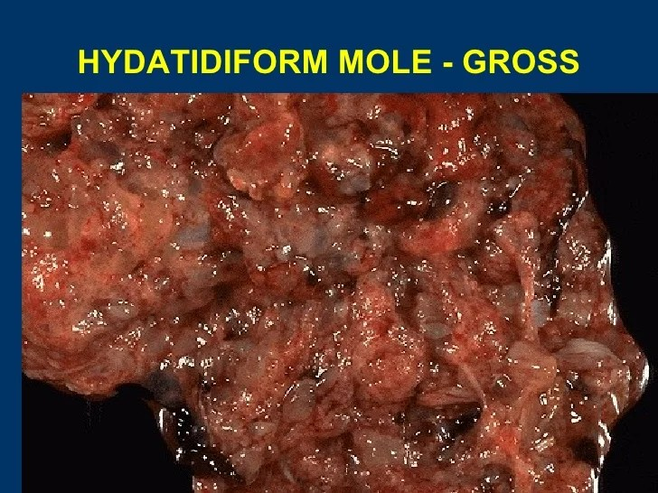 Malignant Neoplasm Cervix