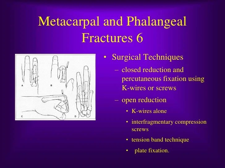 1st Metacarpal Base Fracture