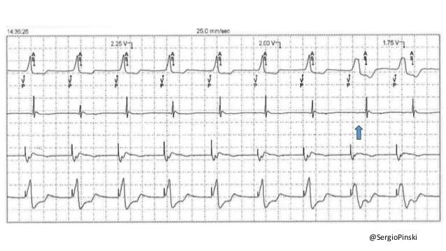 Estimulación del His vs. estimulación septal