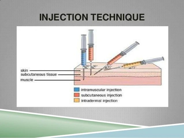 Intramuscular injection needle size