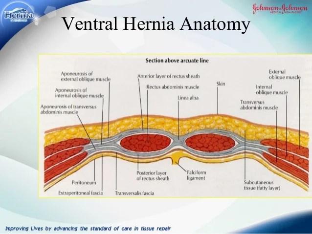 Laparoscopic Inguinal Hernia Repair Anatomy