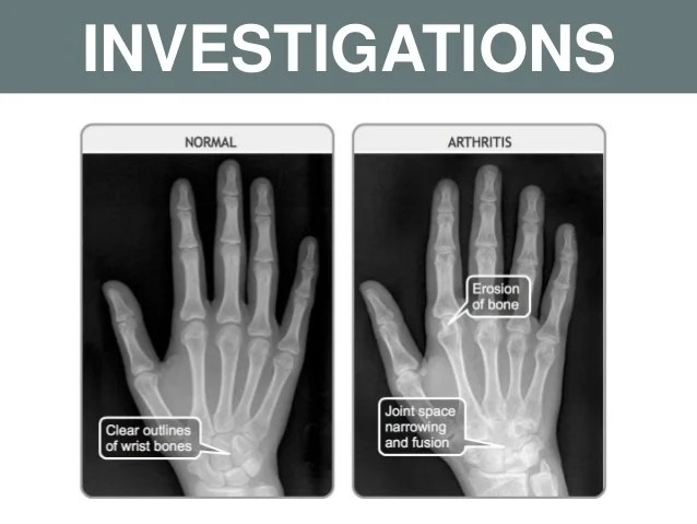 Joint Swelling Arthritis