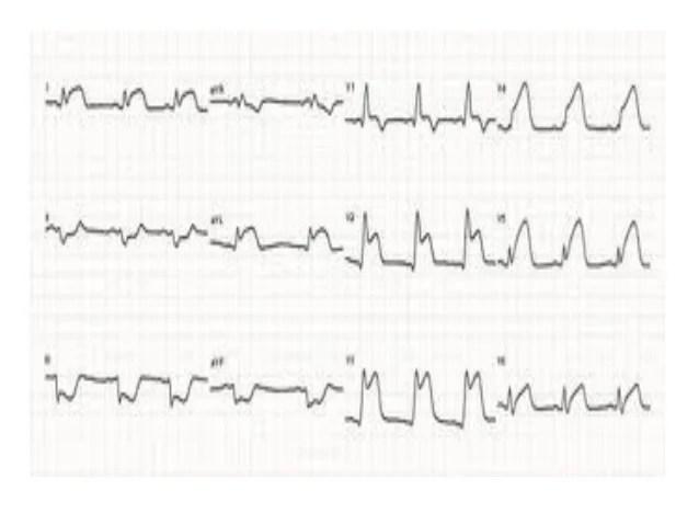 ECG de vasoespástica
