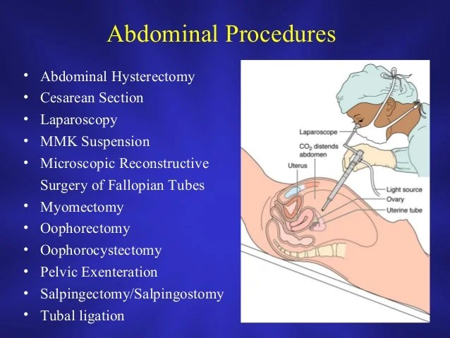 Salpingectomy Hysterectomy