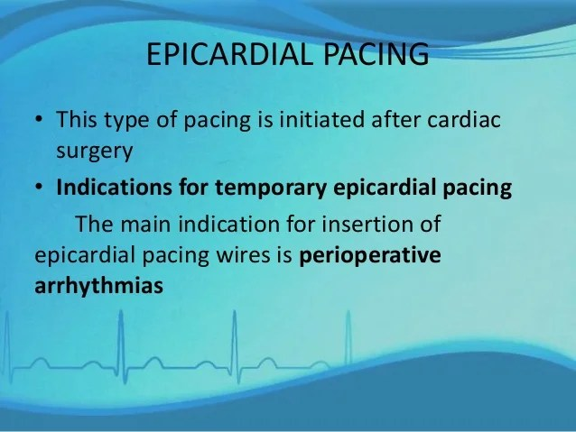 Management of a patient with pacemaker