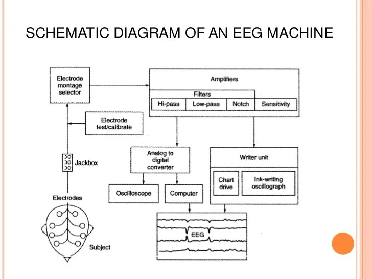 Remarkable Block Diagram Eeg Machine Wiring Digital Resources Helishebarightsorg
