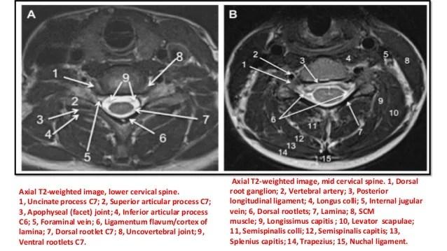 Axial Mri Lumbar Apophyseal Joint