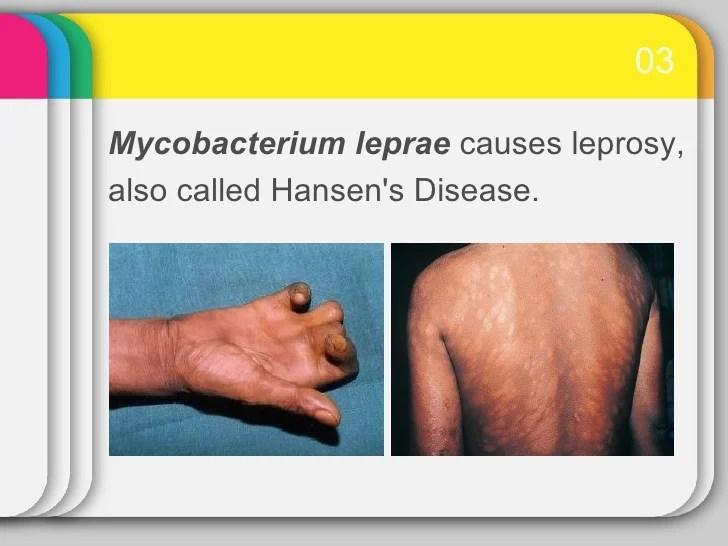 Hansens Disease Bacteria