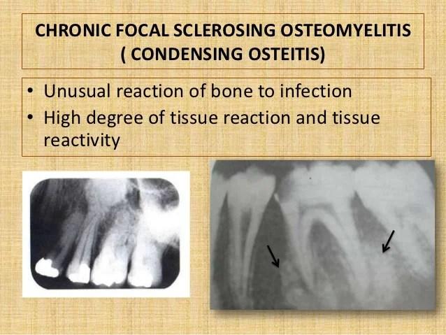 Osteomyelitis Chronic Sclerosing Mandible